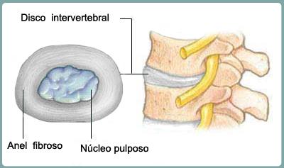 Resultado de imagem para disco intervertebral